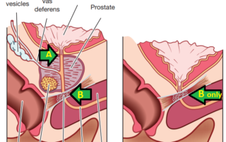 Comparing bladder control before and after radical prostatectomy